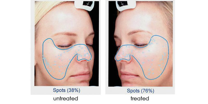 microdermabrasion-with-infusion