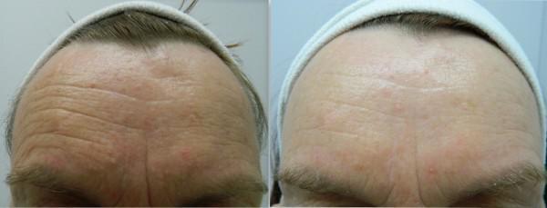 Forehead Wrinkles Treatment - Nova Derm Institute
