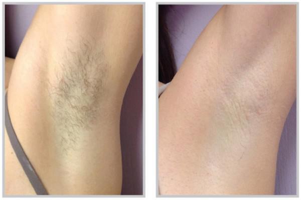 Armpit hair removal - nova derm institute