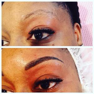 Eyebrows Treatment - Nova Derm Institute