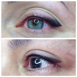 Eye Skin Therapy - Nova Derm Institute