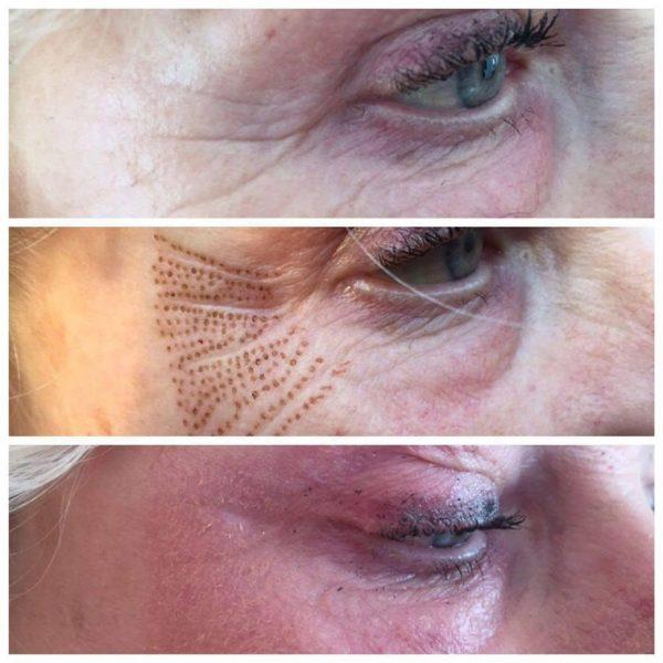 plasma-wrinkles