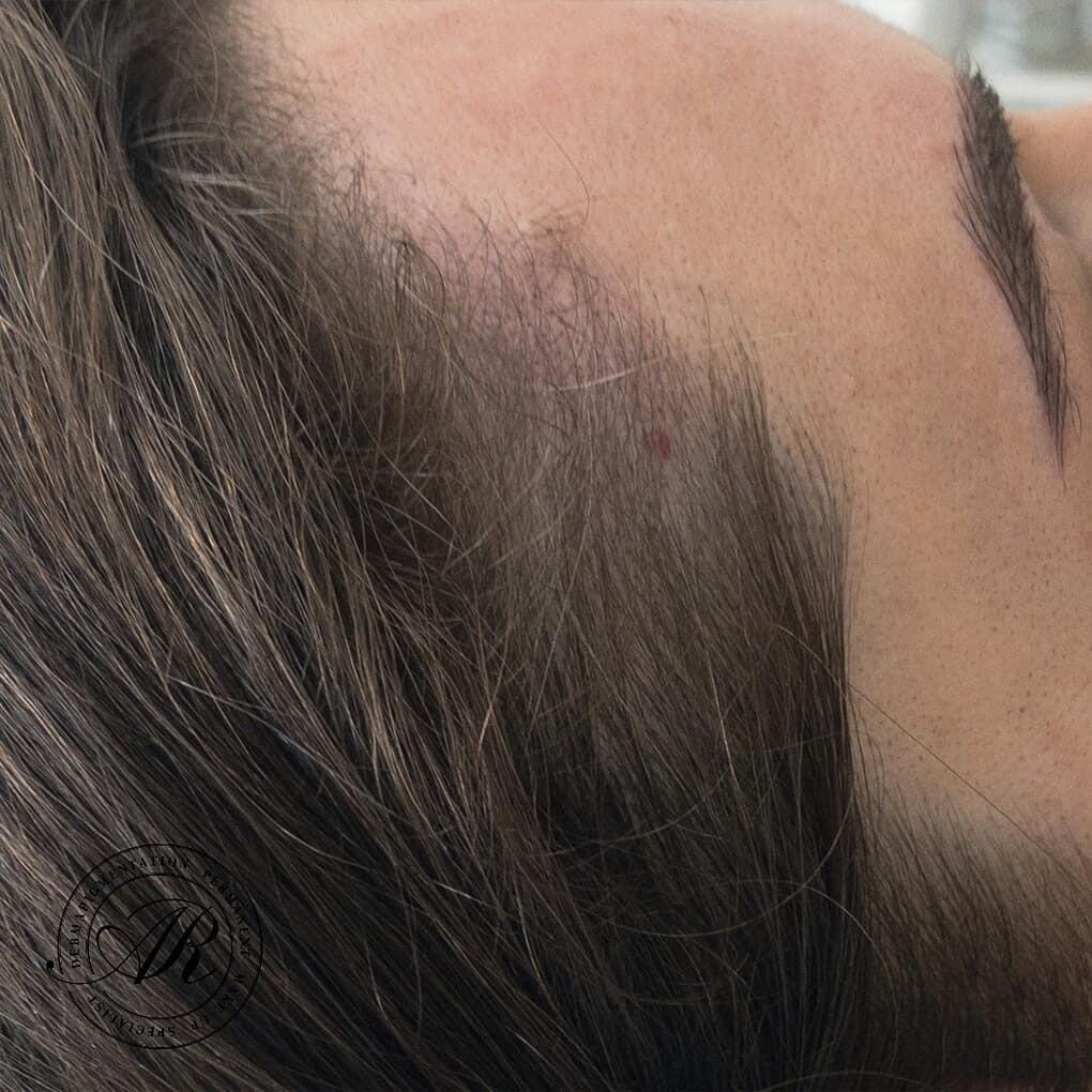 scalp-microgermination